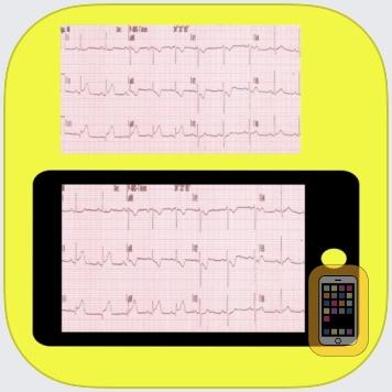 ECG Reader by Muhammet Bilgi (iPhone)