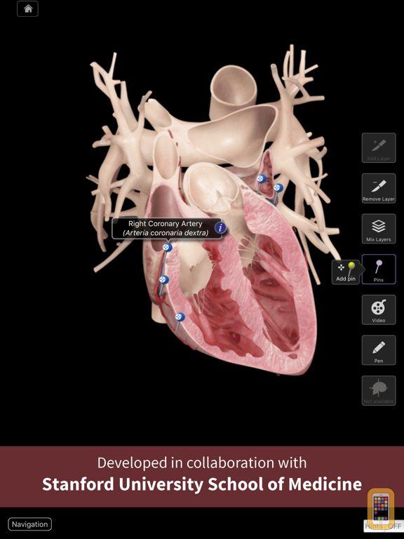 Screenshot - Heart Pro III