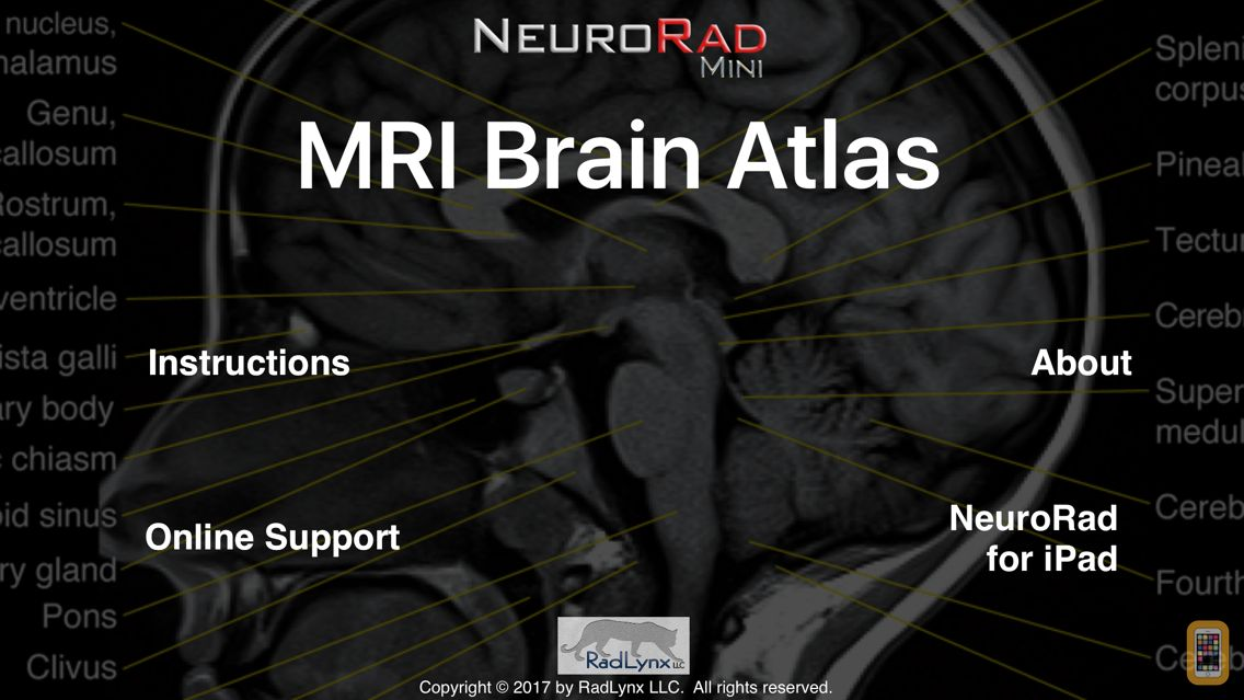 Screenshot - NeuroRad Mini