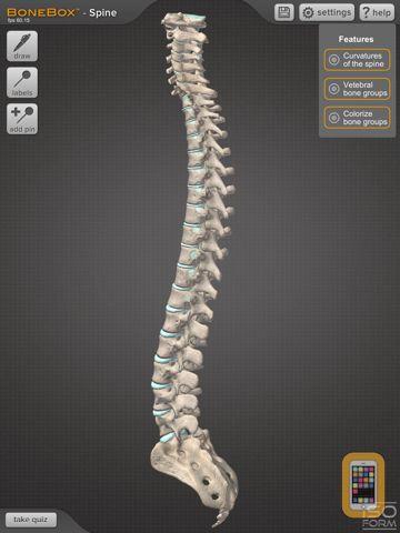 Screenshot - BoneBox™ - Spine Viewer